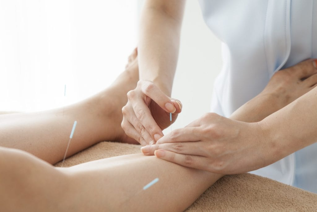 Acupuncturist is treating the legs of women