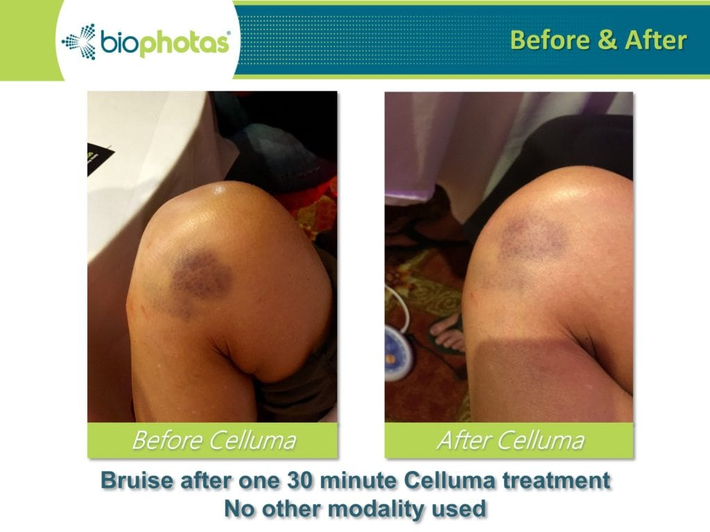 knee bruising before and after